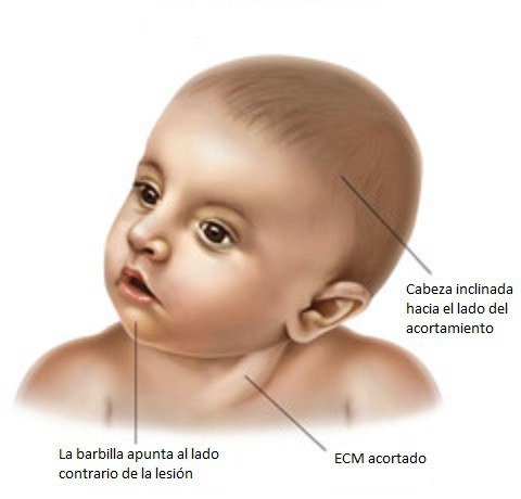 tortícolis congenita