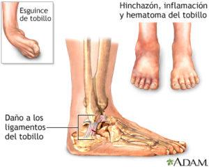 ligamentos-tobillo-esguince-fisioterapia-osteopatía-murcia