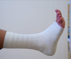 vendaje funcional-fisioterapia-esguince-tobillo-murcia