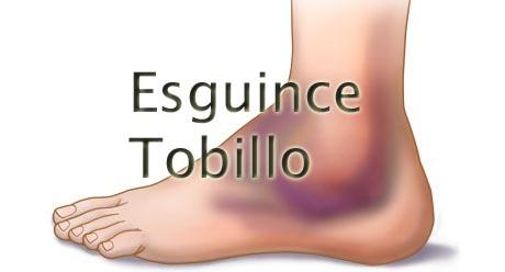 esguince-tobillo-fisioterapia-murcia-osteopatia